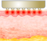 Ultracel Resim 6