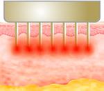 Ultracel Resim 8