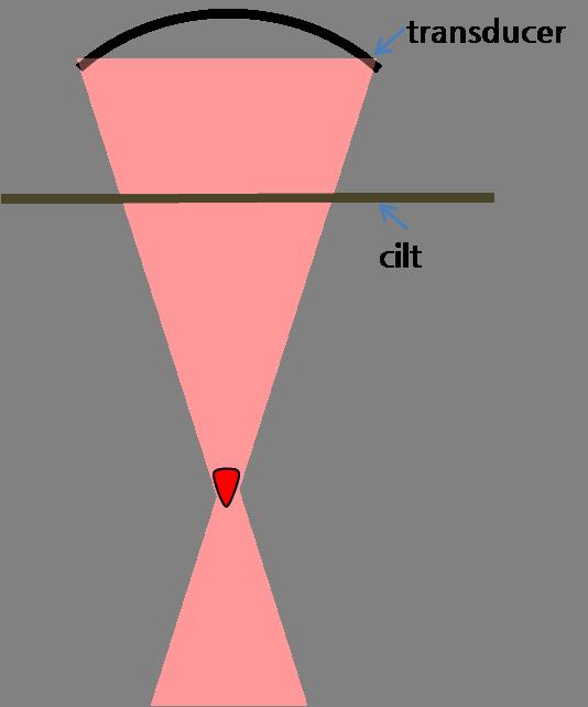 Ultracel Resim 2